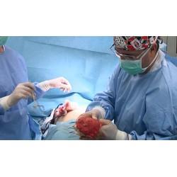 ČR - zdravotnictví - operace - plastické - žena - prsa - liposukce