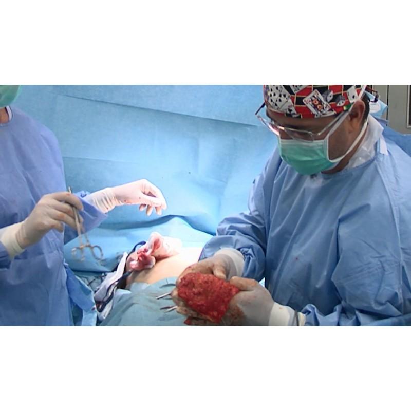 CR - health care - operation - plastic - breast - liposuction