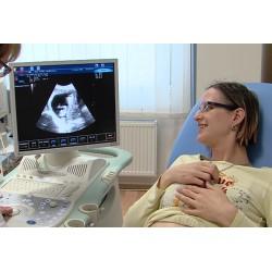ČR - zdravotnictví - gynekologie - vyšetření - ultrazvuk