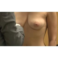 ČR - zdraví - lidé - žena - břicho - oči - oční víčka - operace - plastika