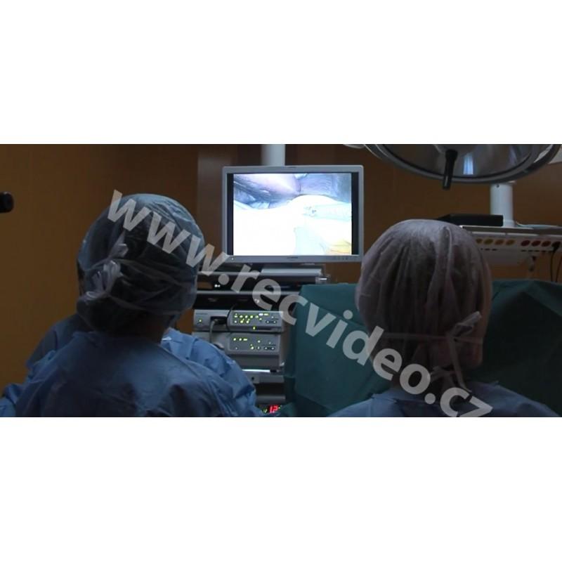 ČR - nemocnice - operační sály